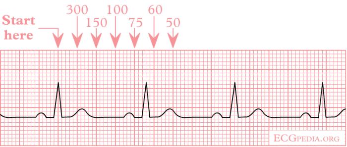 Normal ECG strip