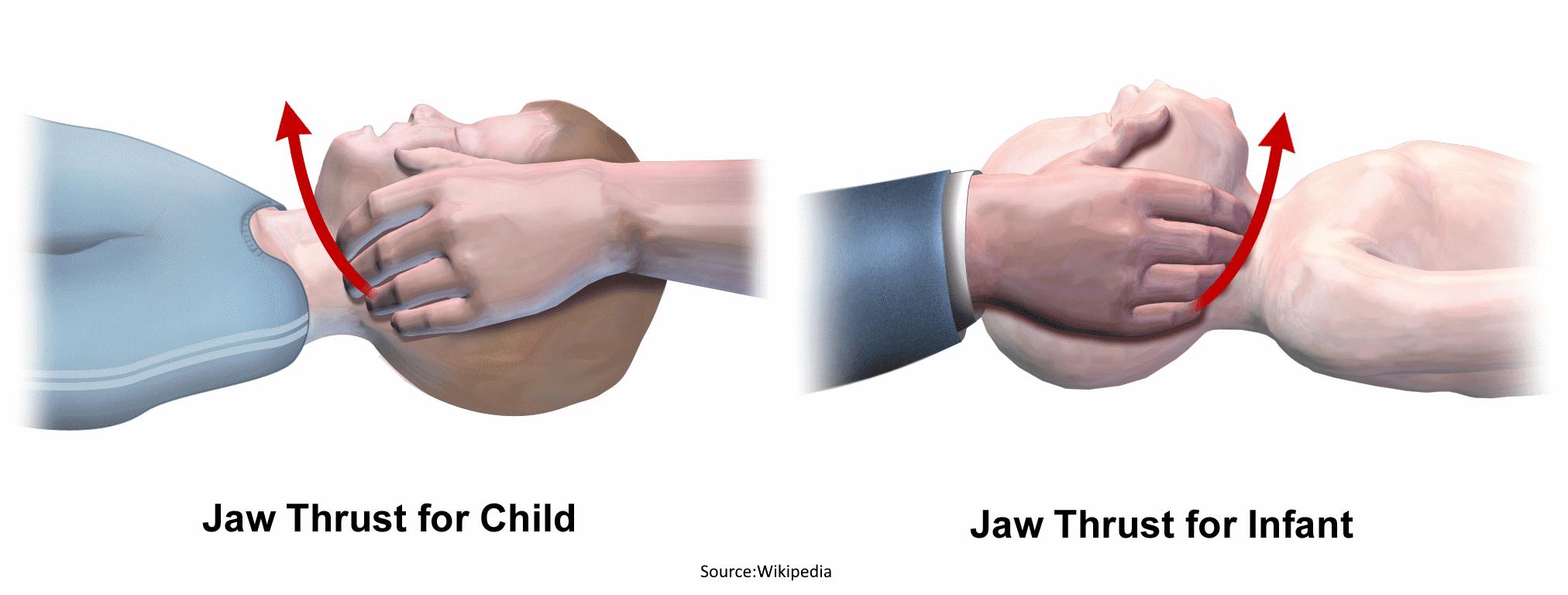 Pediatric jaw thrust